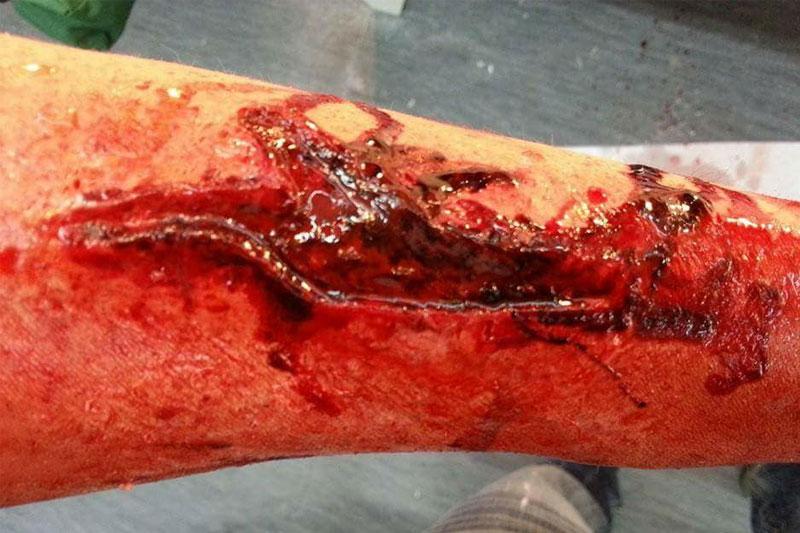 Trucco ferita